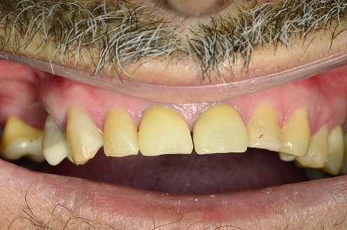 Before application of plaque disclosing gel